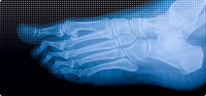 Image of an X-Ray of a foot - www.foot-dynamics.co.uk