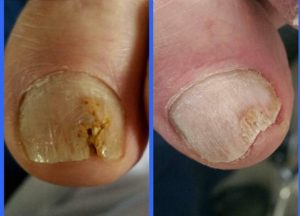 Image of lacuna method (antifungal nail treatment) - www.foot-dynamics.co.uk